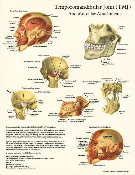 Google Image Result For Http Www Dcfirst Com New2010 Tmj Anatomy Poster Jpg Tmj Tinnitus Remedies Temporomandibular Joint