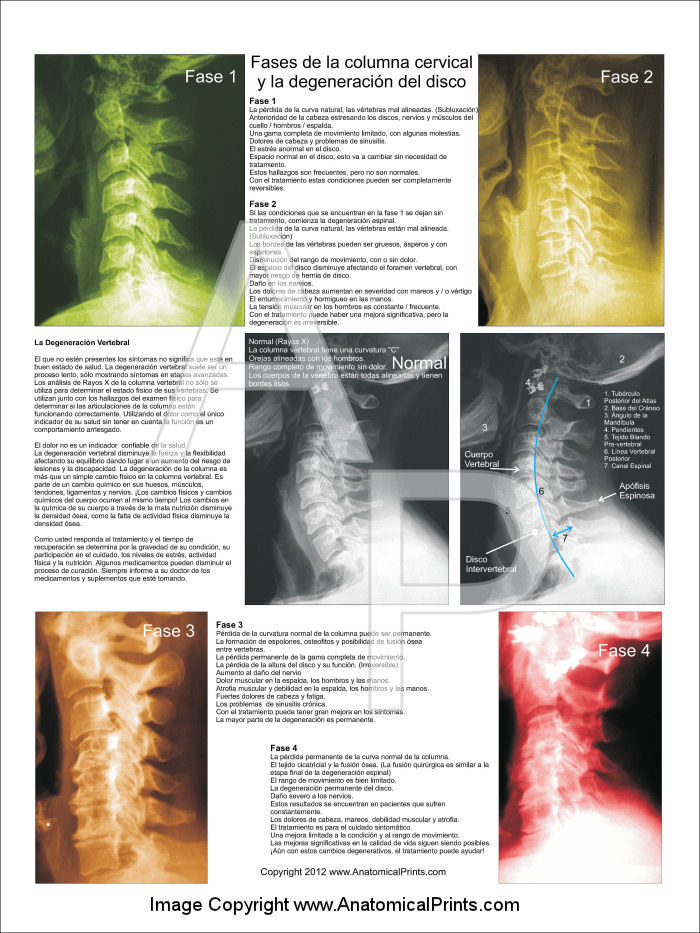 Spinal Degeneration Poster